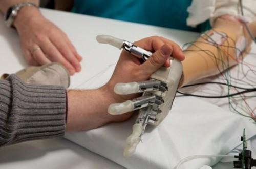 Sperimentazione delle protesi cibernetiche