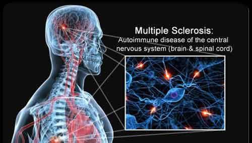 Le cause neurologiche della sclerosi multipla