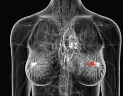 Metastasi al seno