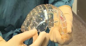 La protesi di calotta cranica stampata in 3D utilizzata per l'intervento realizzato in Olanda