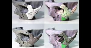 Progettazione e stampa di protesi ossee per la ricostruzione facciale grazie alle tecnologie 3D
