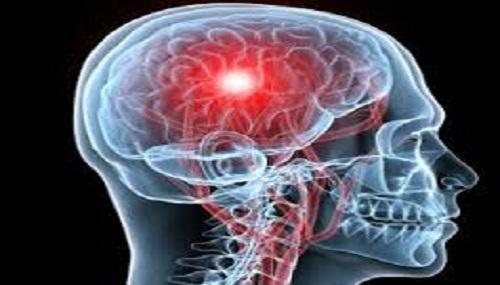 Ictus cerebrale
