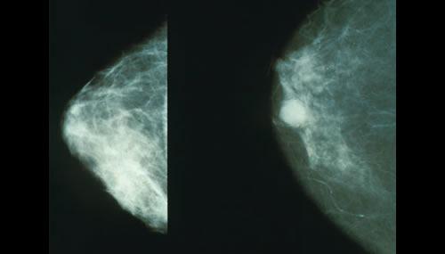 """Screening mammografico: nella foto l'immagine mammografica di un seno sano a destra e di un seno connodulo tumorale (""""Mammo breast cancer"""". Con licenza Public domain tramite Wikimedia Commons - http://commons.wikimedia.org/wiki/File:Mammo_breast_cancer.jpg#mediaviewer/File:Mammo_breast_cancer.jpg)"""
