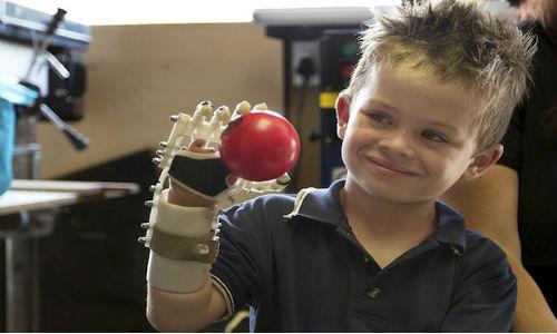 Un braccio bionico