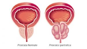 Differenza fra una prostata normale ed una prostata ingrossata a causa del cancro