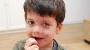 Bambino ammalato di varicella