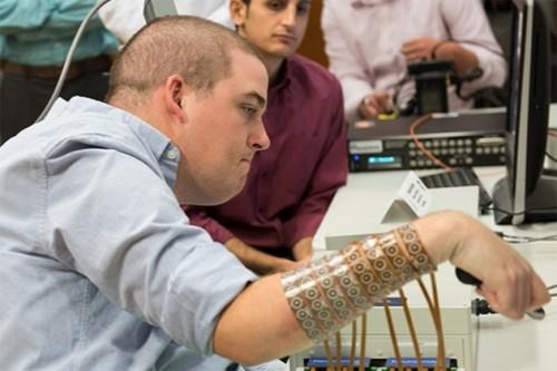 Un caso di paralisi che migliora con un microchip